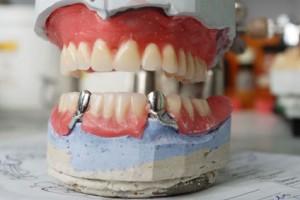 nach dem bohren zahnschmerzen