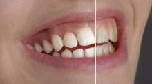 Zahnreinigung Pulverstrahl